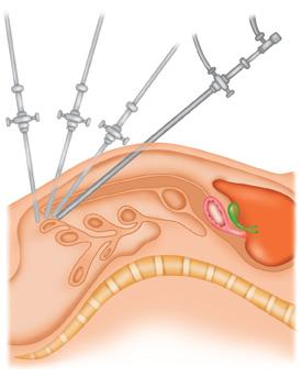 Minimally-invasive-surgery