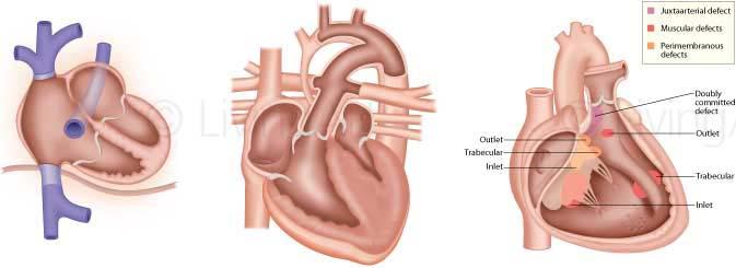 NEW-Cardiac-2