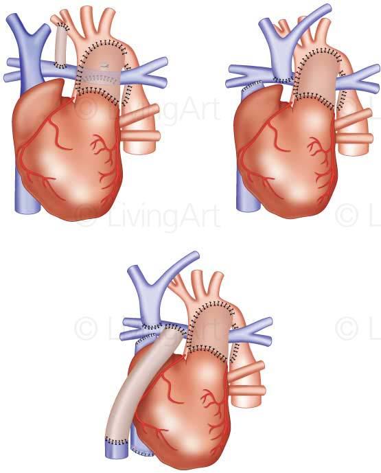NEW-Cardiac