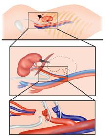 Nephrectomy-