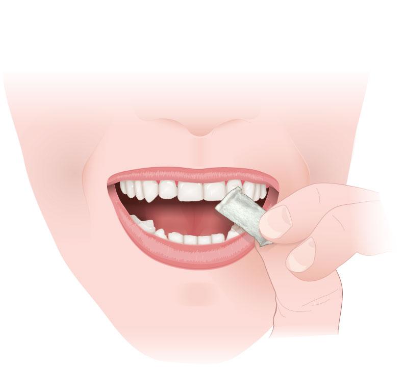 MEDICAL ART-1-Application-of-Snus-STEP-1-260118