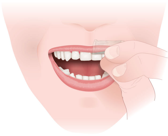 MEDICAL ART-1-Application-of-Snus-STEP-2-260118
