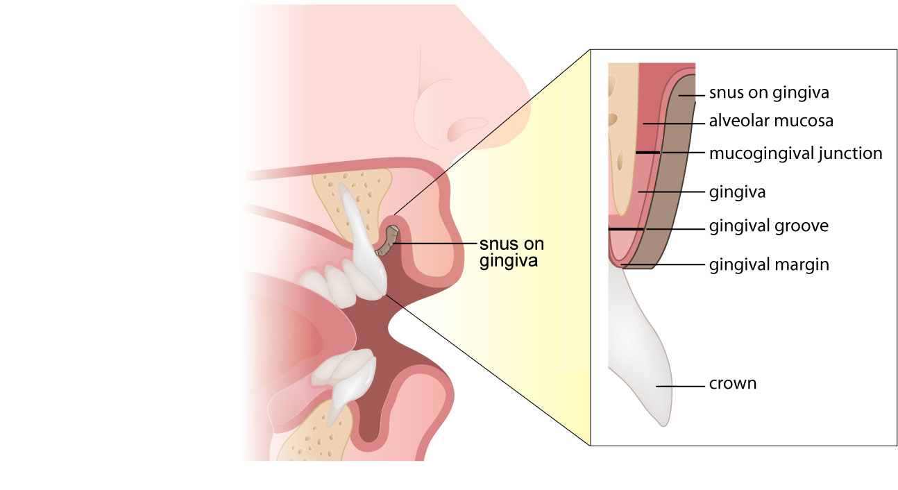 MEDICAL ART-4-part-2-Cross-section-and-PULL-OUT-with-snus-in-place